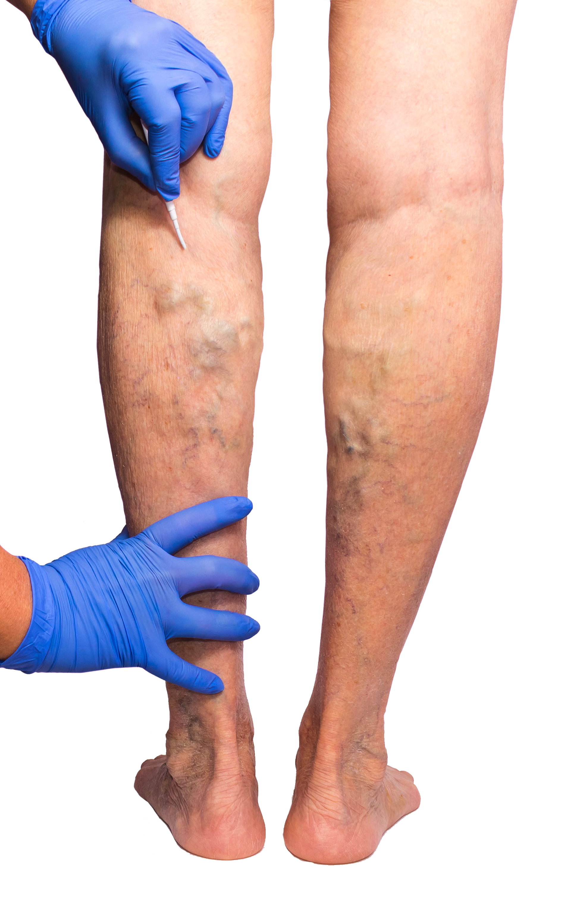 Are you looking for a vein doctor in Paramus? In this article, we introduce you to Dr. Todd Kobrinski, the best double board-certified vein doctor in Paramus, NJ.