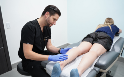 What Can I Expect from Varicose Vein Treatment in Clifton?